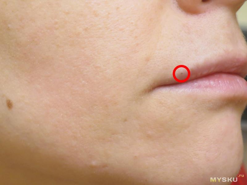 Ультразвуковой очиститель кожи - боремся с прыщами и увлажняем лицо