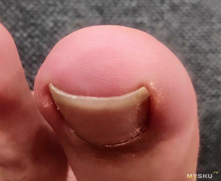 """""""Выравнивалка"""" для ногтей. Проверяю на себе))"""